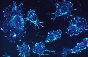 autofagia-en-celulas-cancerosas-cancer-cells-541954_1920